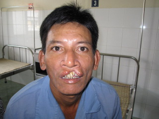 Tam Before surgery