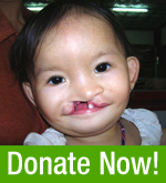 Donate to Interplast!